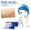Pair Acne Cream W 14 g. thumbnail 2